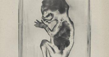 Lindemann - Praise Abort